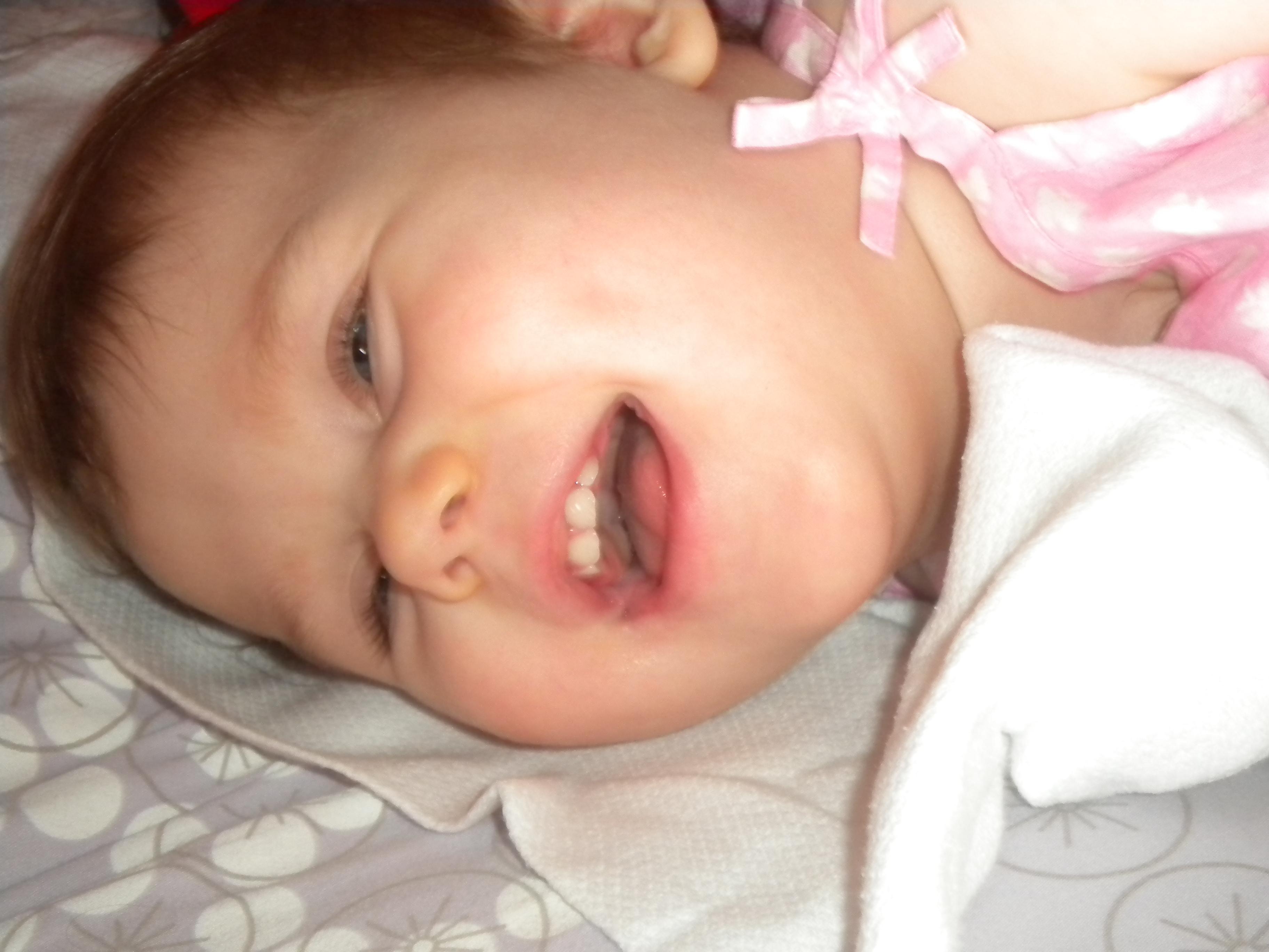 5 måneder uten krampeanfall   lillegullemily